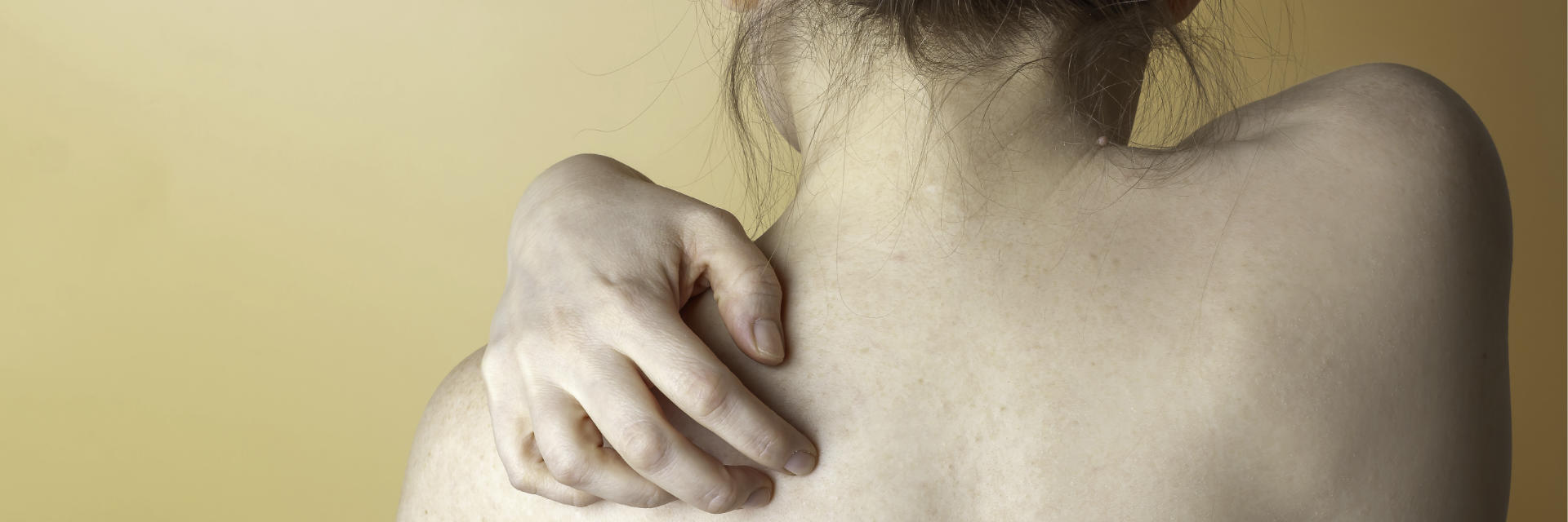 A woman with shoulder pain due to osteoarthritis.