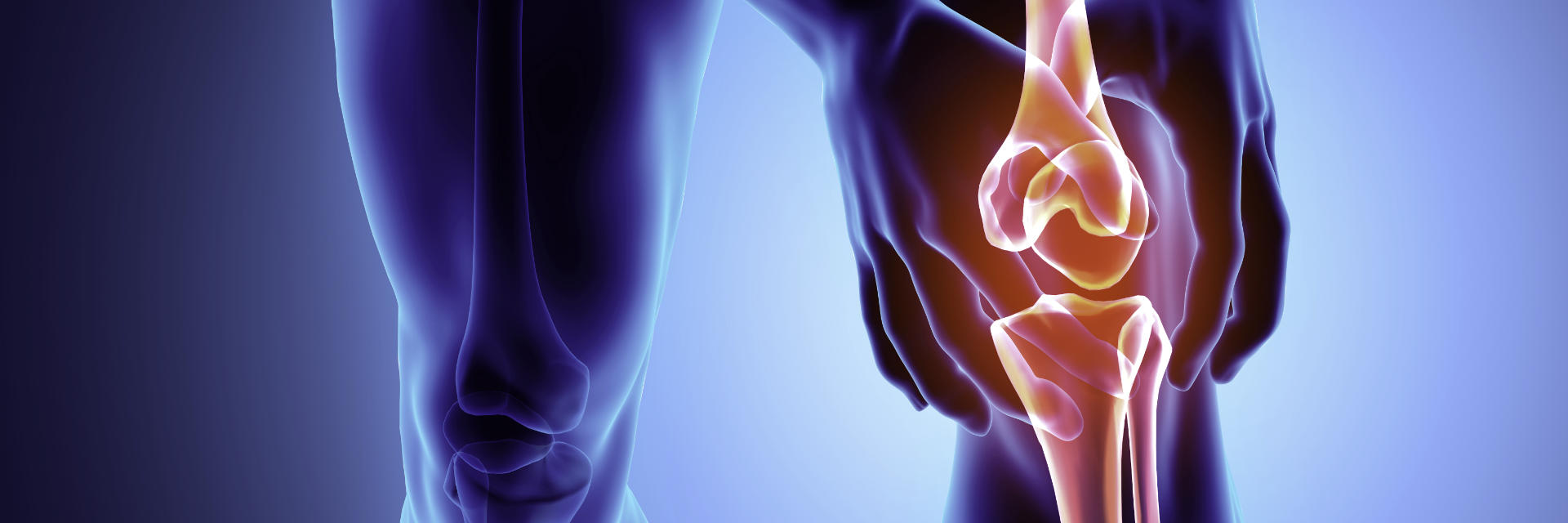 Knee joint with torn meniscus requiring arthroscopy for meniscus repair.