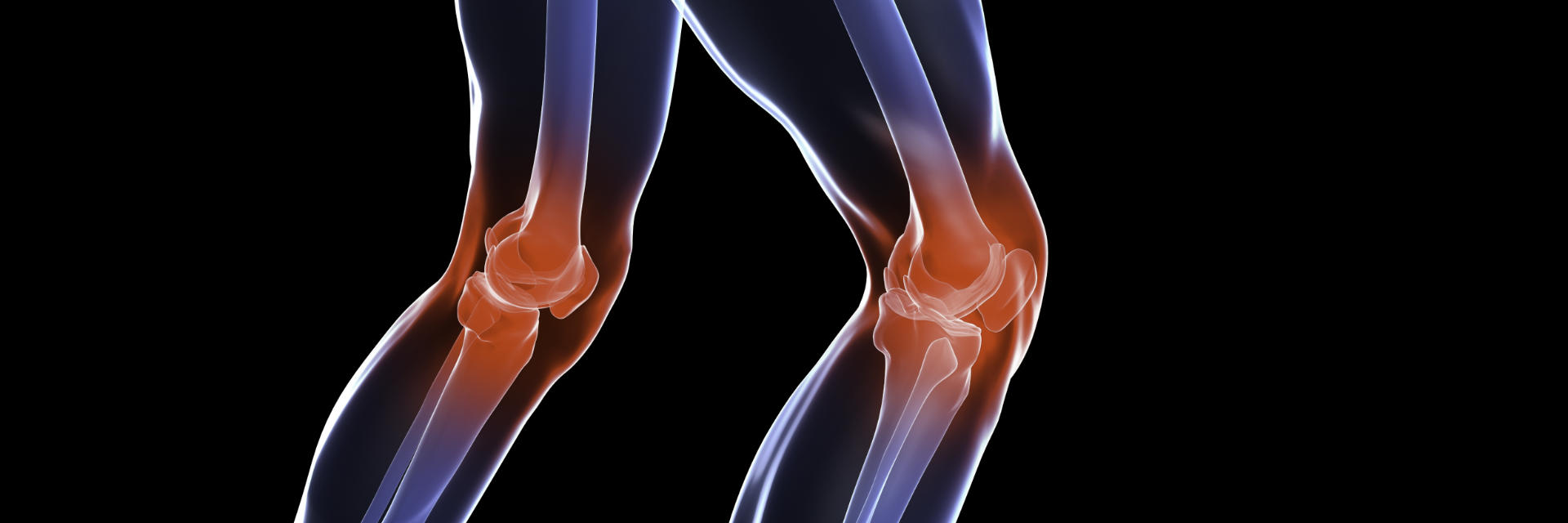Damaged knee joints requiring total knee replacement surgery.